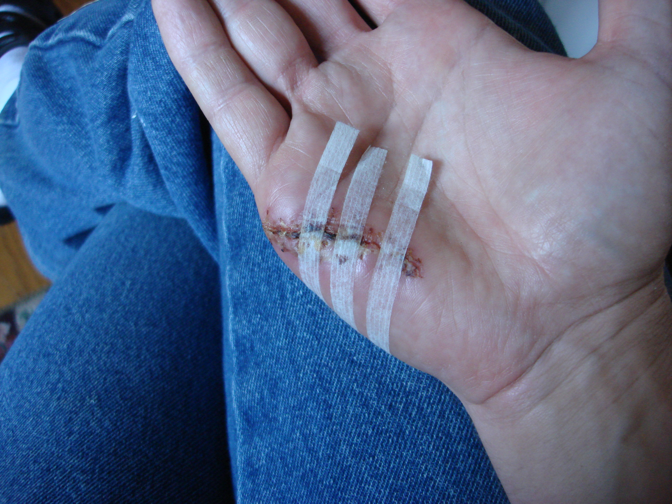 how to make steri strips fall off